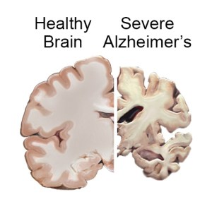 alzheimers brain_slices