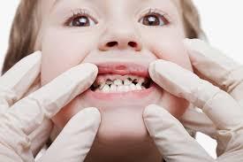 Penanggulangan Karies Gigi Pada Anak