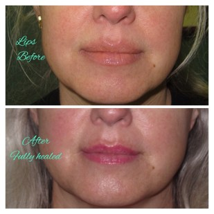 Permanent Lips, Fully Healed, Before & After