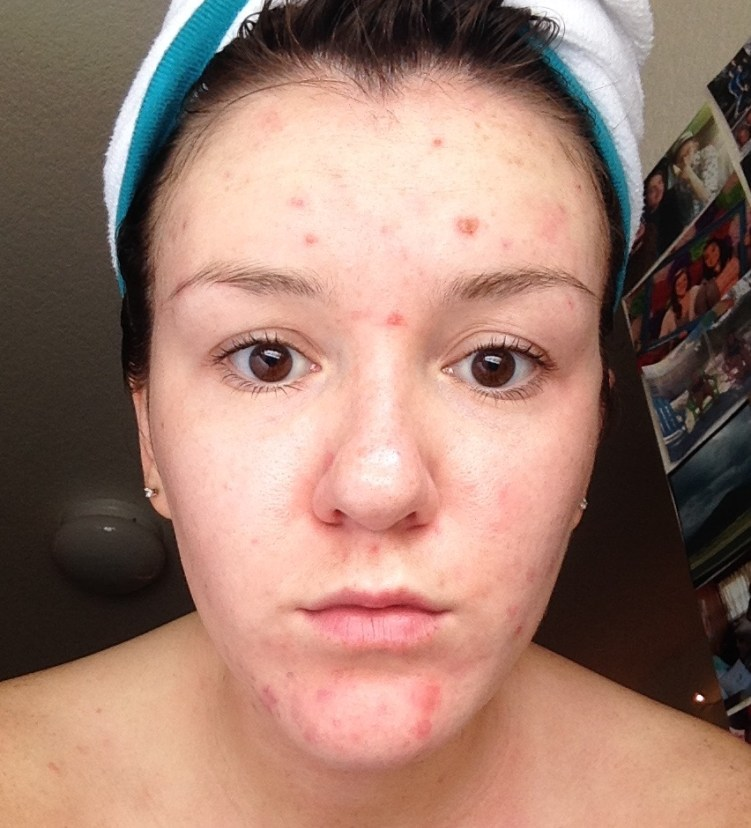 The breakouts were never ending while I was on Minocycline and my bad habit of picking only made it worse. I had pesky chin pimples that I swore died but would comeback to life a million times leaving me with scars that took FOREVER to heal.