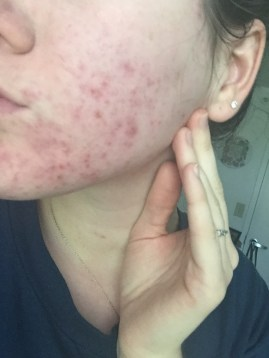 Little red bumps
