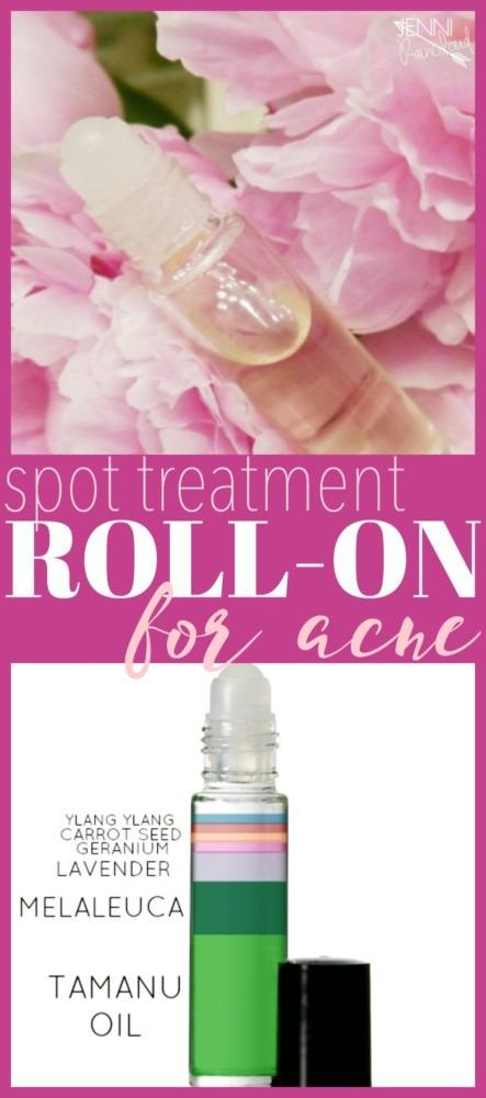 DIY Spot Treatment Roll On