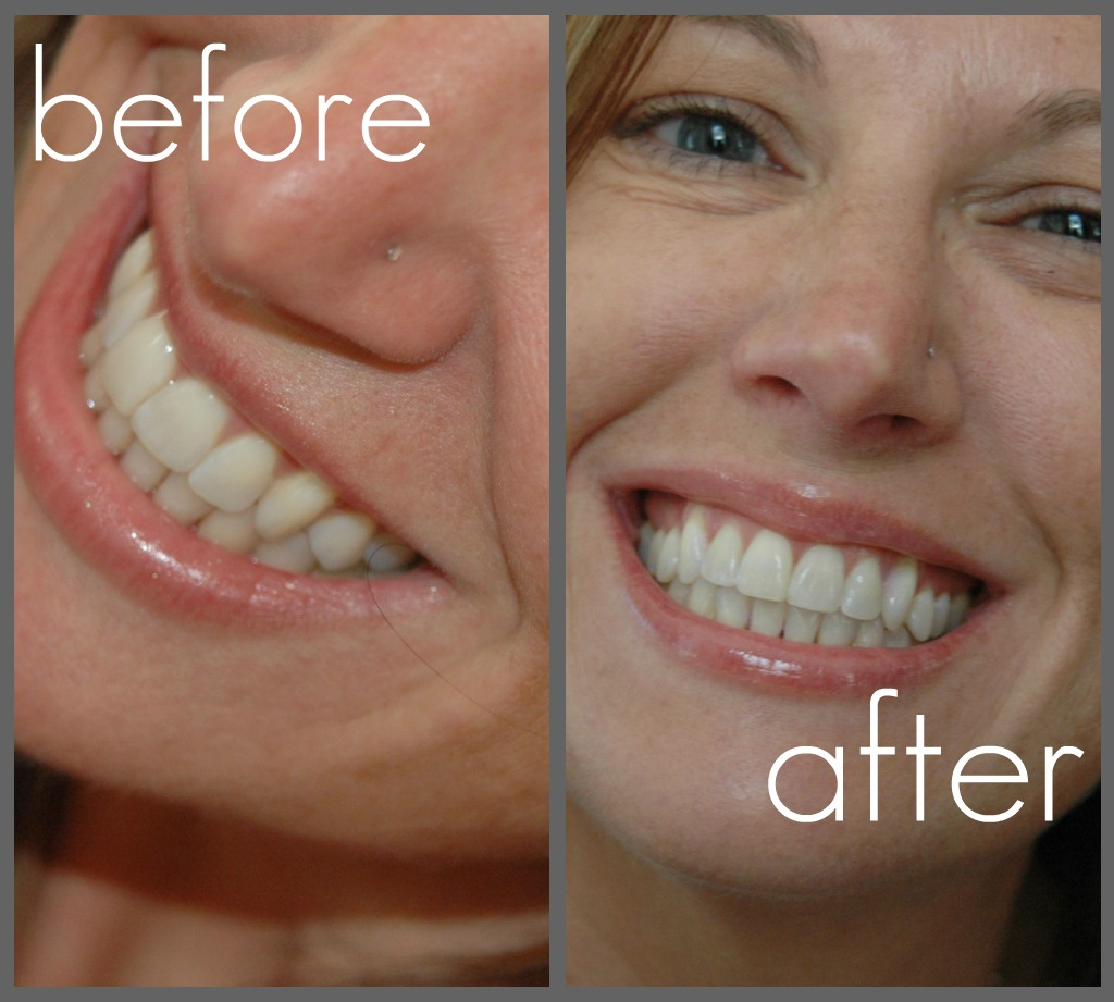 Crest 3d White 2 Hour Express Whitestrips Before And After And Coupon