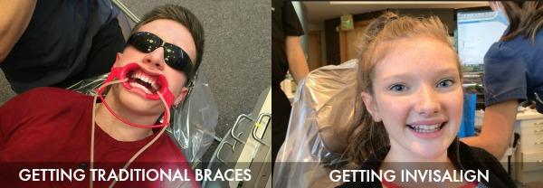 Getting traditional braces vs. Invisalign