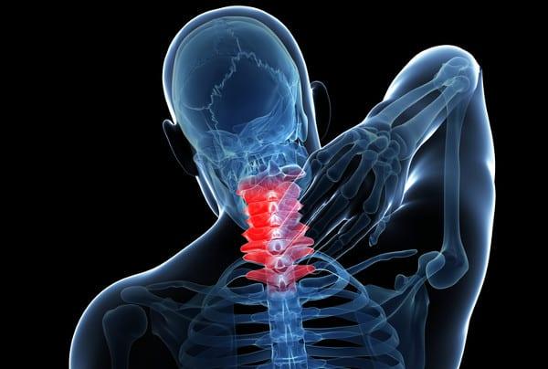 Nackenschmerzen bei HWS-Syndrom: TCM in Hamburg