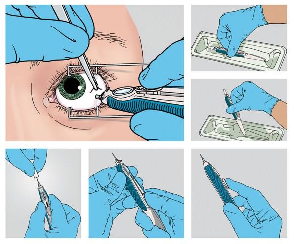 Ocular Inserter Physician's Guide