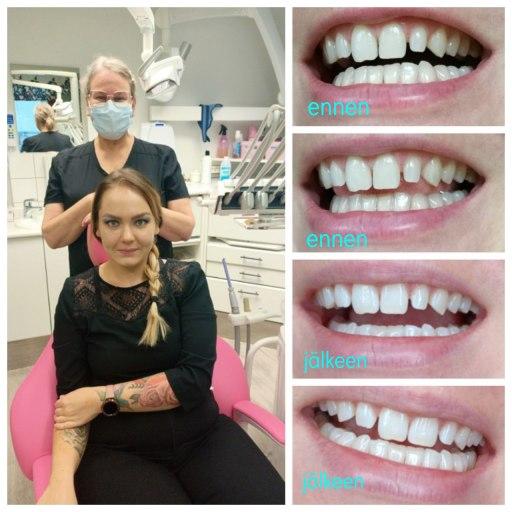 Koulukadun Hymy kokemuksia + Hampaiden valkaisu tulokset