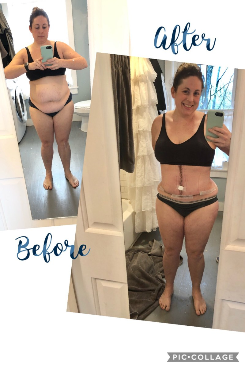 Diastasis Recti - 4 Weeks Post Op