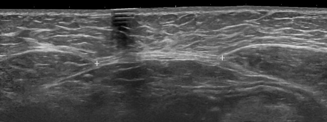 Ultrasonography_of_diastasis_recti