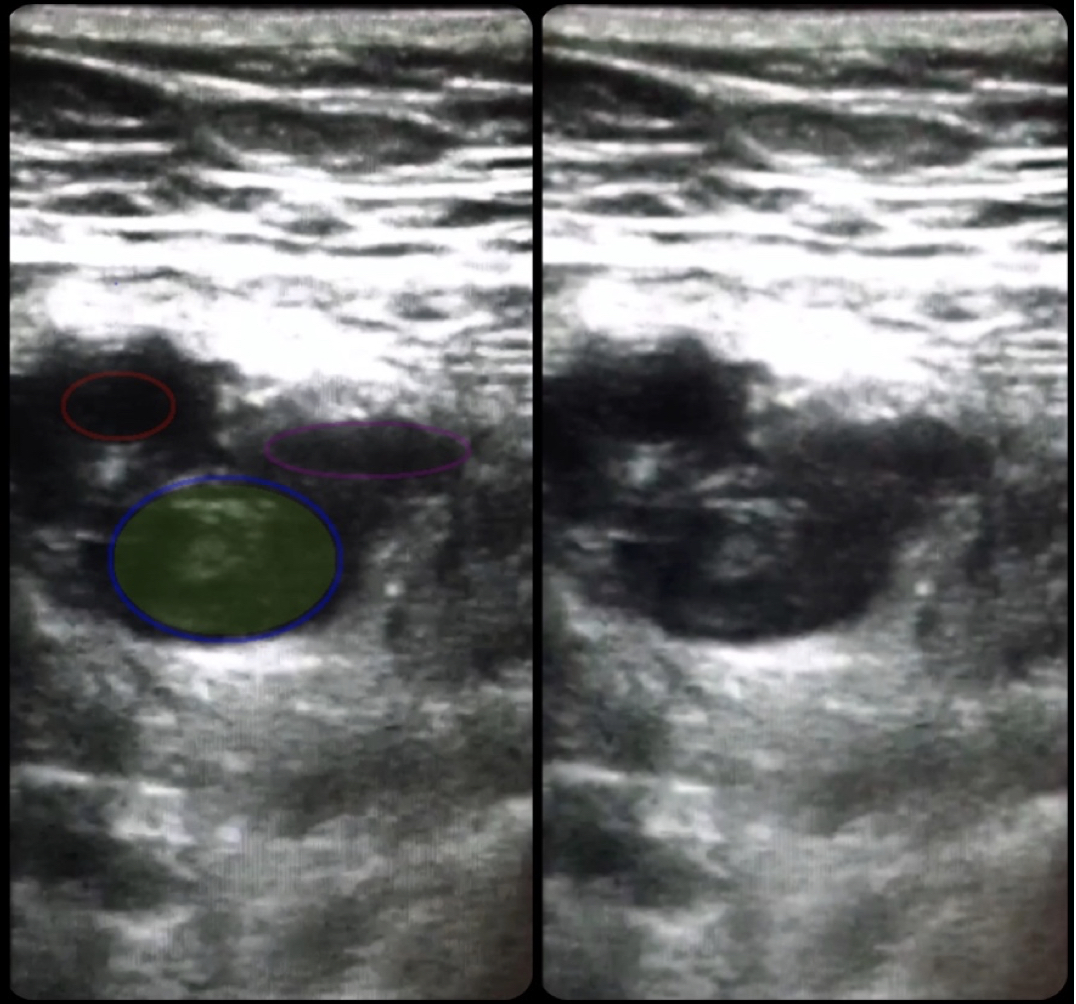 Use Of Bedside Compression Ultrasonography For Diagnosis