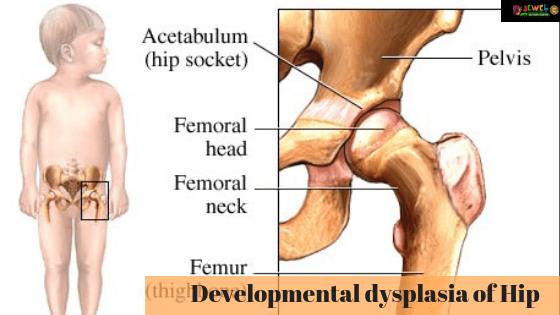 Developmental Dysplasia of Hip