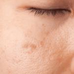 Indemnización y cicatrices en la cara
