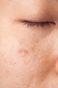 Cicatrices en la cara por accidente de tráfico