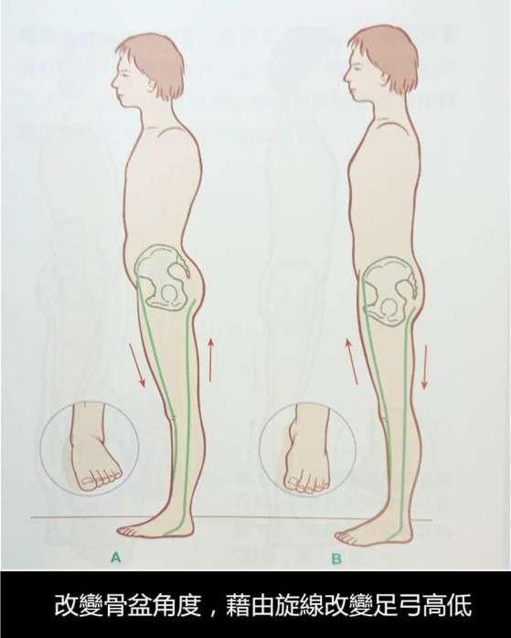 骨盆和足弓.jpg