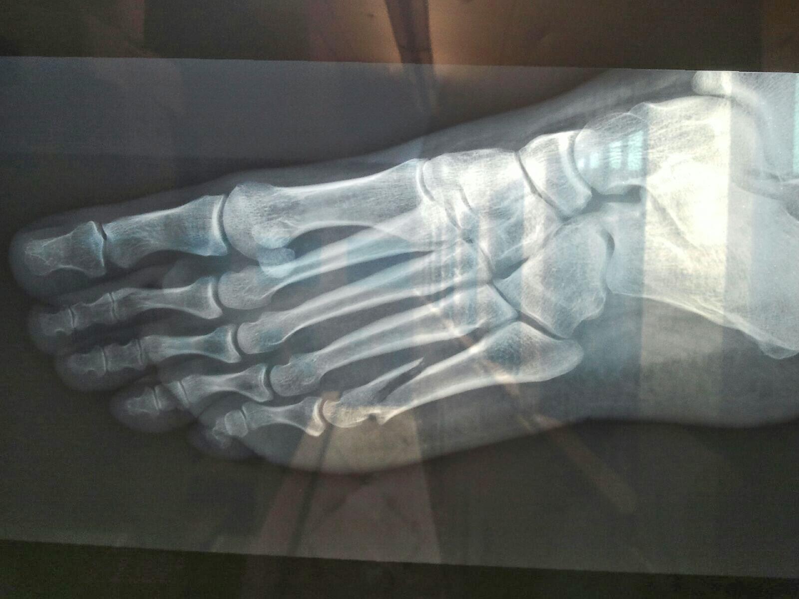 Do I Need an X-Ray?