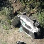 Tiger Woods Rolls SUV – Surgery For 'Major Leg Injuries' – Seen Driving At 'High Rate Of Speed'