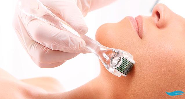 What Is Micro Skin Needling? | Woman receiving microneedling treatment | Jiva Spa Toronto anti aging facials beauty spa salon skin rejuvenation medispa