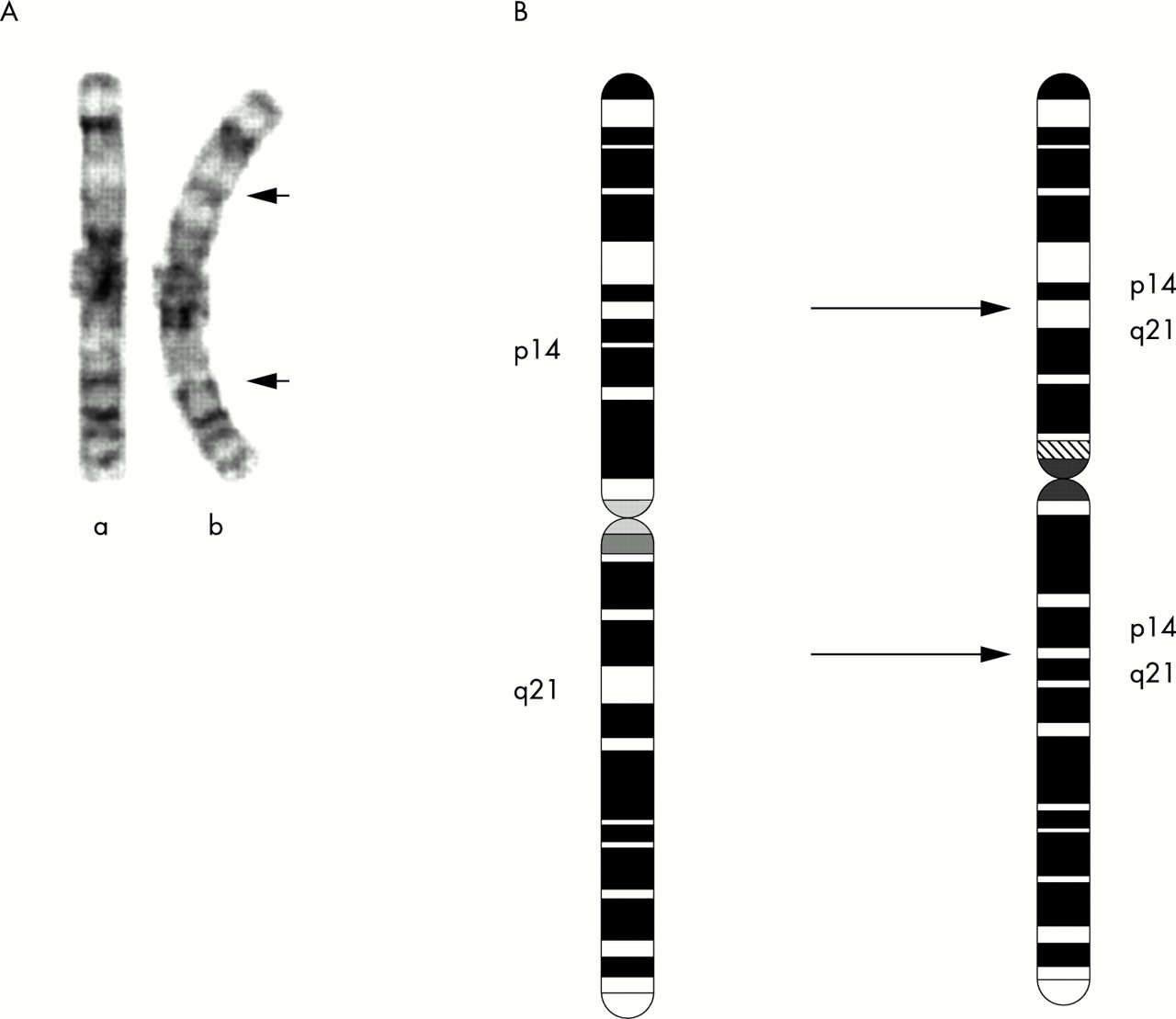A Novel Pericentric Inversion Of Chromosome 3 Cosegregates With A Developmental Behavioural