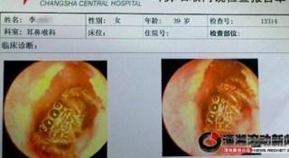 La araña se había instalado dentro del oído de una mujer. (Foto: Changsha Central Hospital) - PULSAR PARA AMPLIAR -