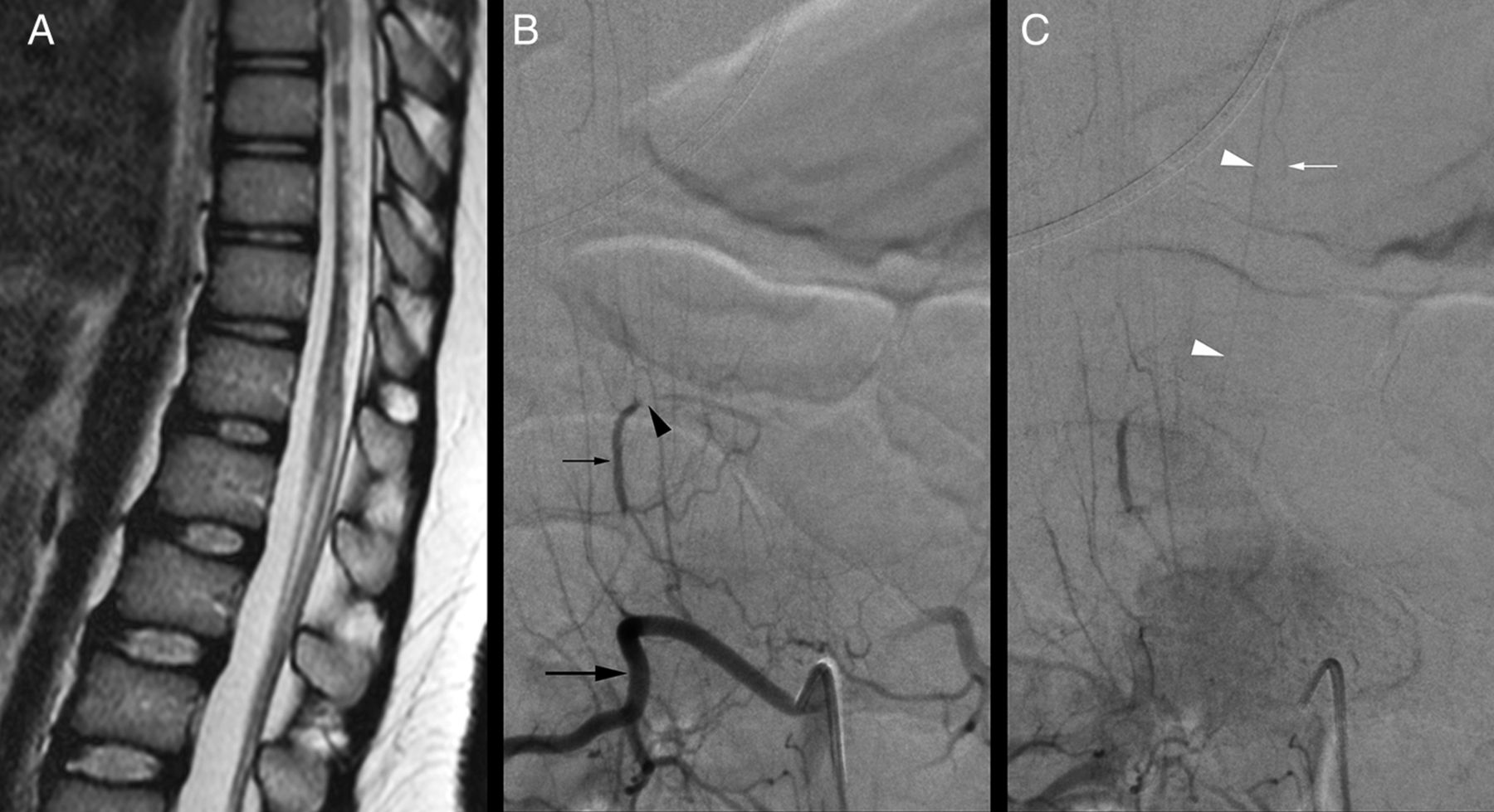 Periconal Arterial Anastomotic Circle And Posterior Lumbosacral Watershed Zone Of The Spinal