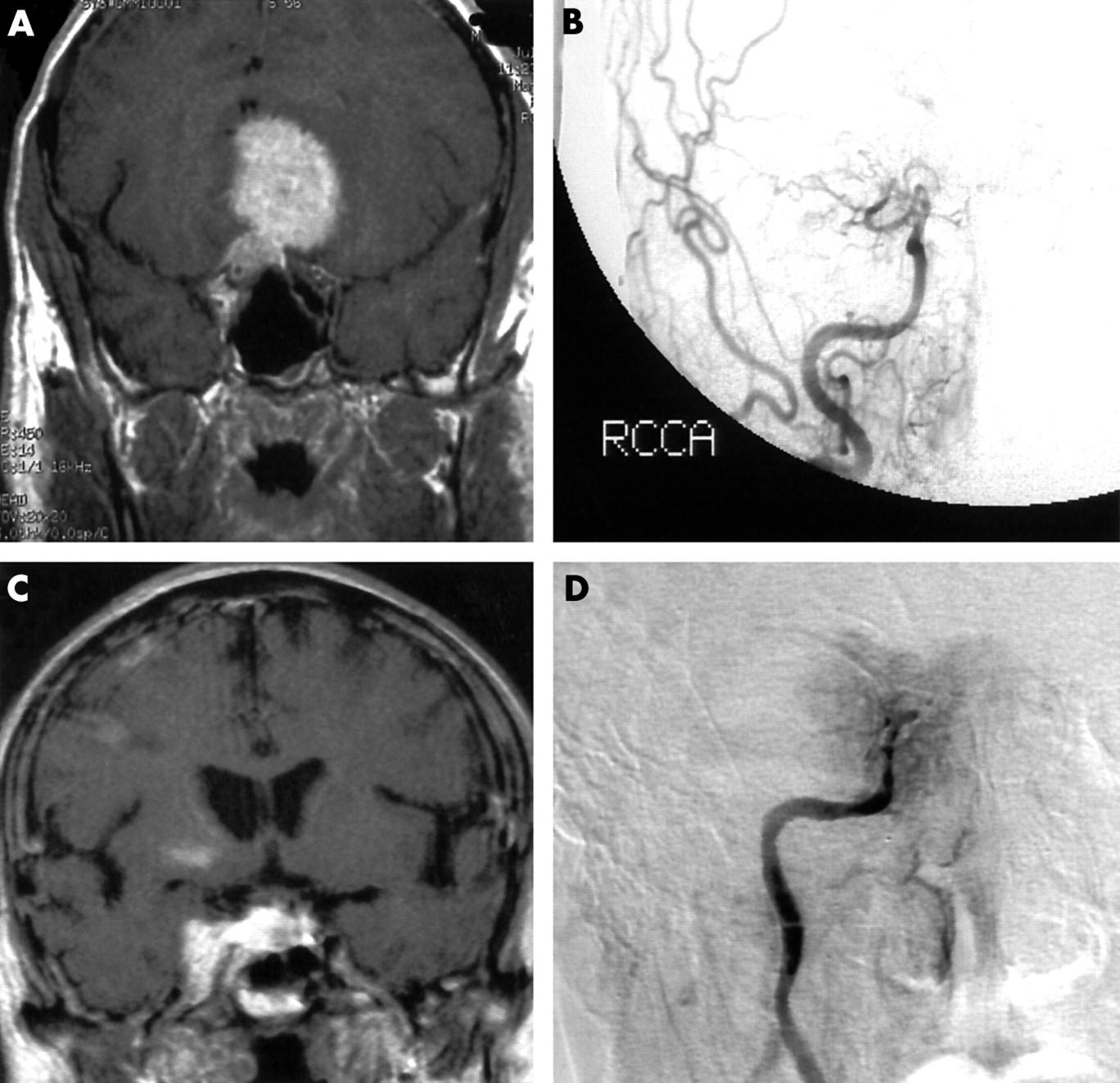 Cavernous Sinus Coronal Mri Normal