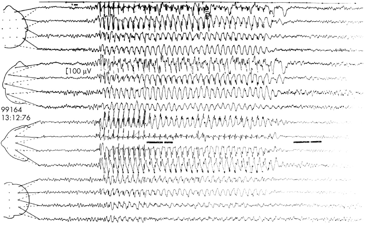 Eeg In The Diagnosis Classification And Management Of