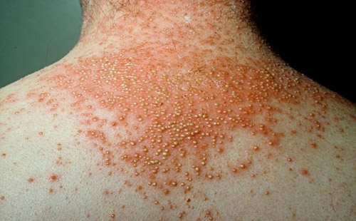 10 Common Skin Irritations - Which One Do You Have ...