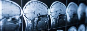 Effects of a Traumatic Brain Injury Atlanta Car Accident Attorney