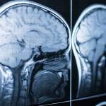 What Are the Long-Term Effects of a Traumatic Brain Injury?