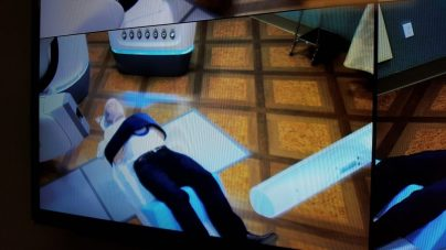 Picture of my cyberknife procedure in progress from an observation conference room.