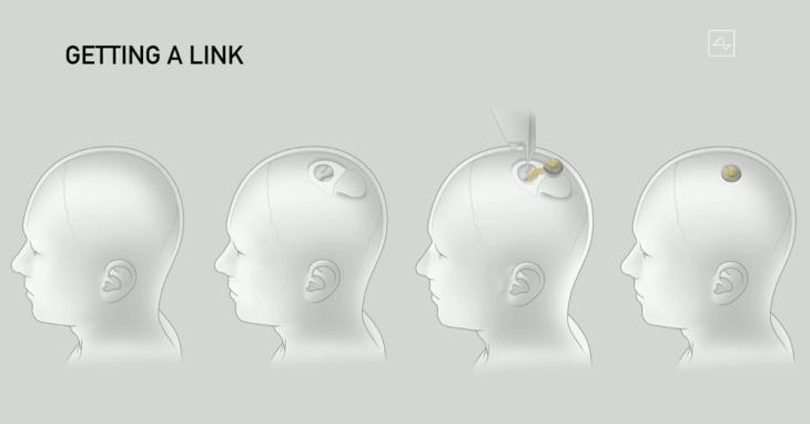 Neuralink link Elon Musk