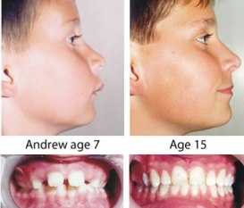 Orthotropics – to move both jaws forward. This boy's front teeth also stuck out but he had orthotropics® to move both jaws forward. No extractions, no train tracks and no relapse.