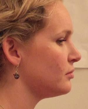 Temporo-Mandibular Disfunction - Painful Jaw Joints