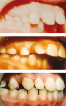 Progression through treatment