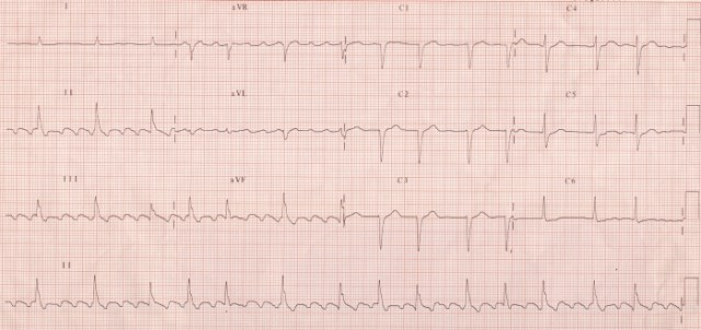 Atrial flutter with varying conduction (4:1 and 3:1)