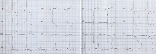 Left ventricular hypertrophy with strain pattern and giant T wave inversion