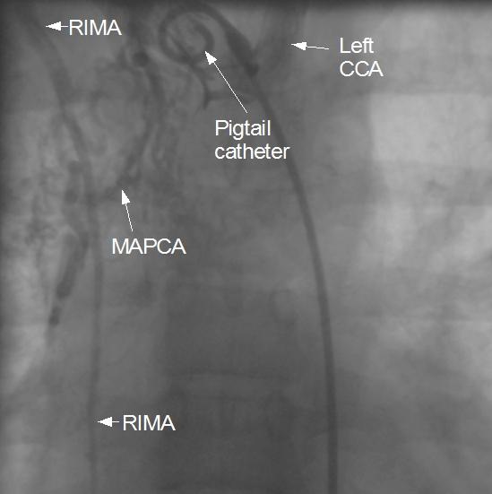 Major aortopulmonary collateral from RIMA 2
