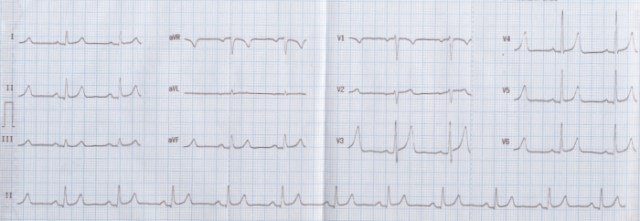 Normal variant ECG with tall T waves