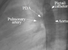 PDA angio prior to device closure
