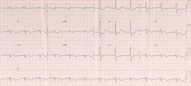 Inferior, posterior and lateral wall myocardial infarction