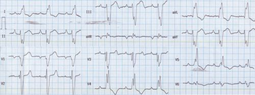 Left bundle branch block with left axis deviation and MI