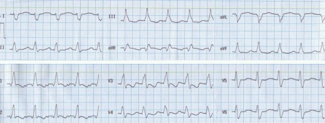 Right bundle branch block with left posterior hemiblock
