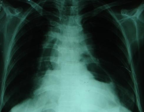 Hydropneumopericardium