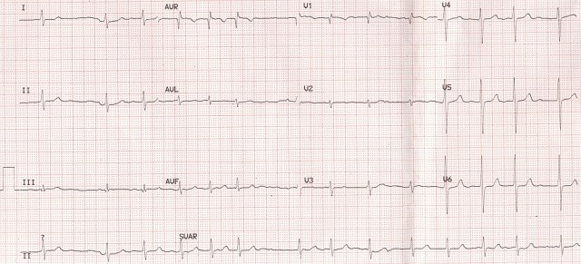 Fine atrial fibrillation