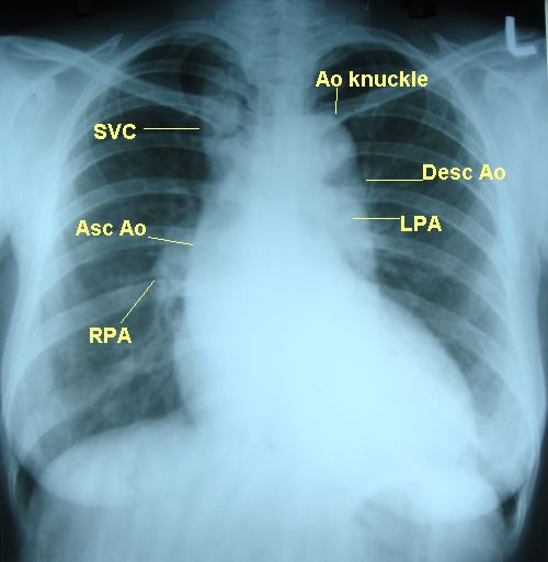 Dilated aorta with unfolding of arch on X-ray chest PA view - annotated