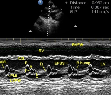 M-mode echo in left ventricular dysfunction due to anthracycline related cardiomyopathy - annotated