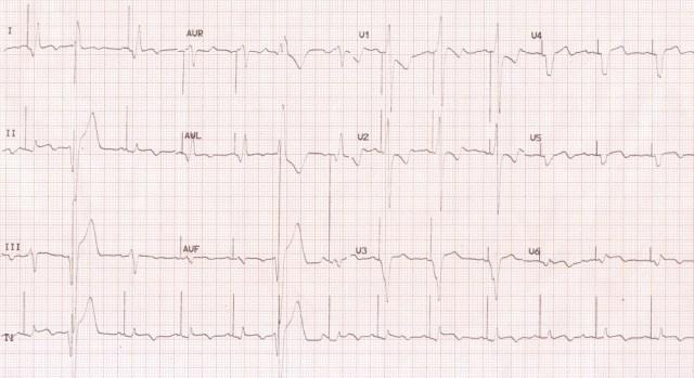 ECG in cardiac resynchronization therapy (CRT)