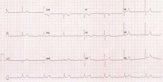 Sinus bradycardia with first degree AV block