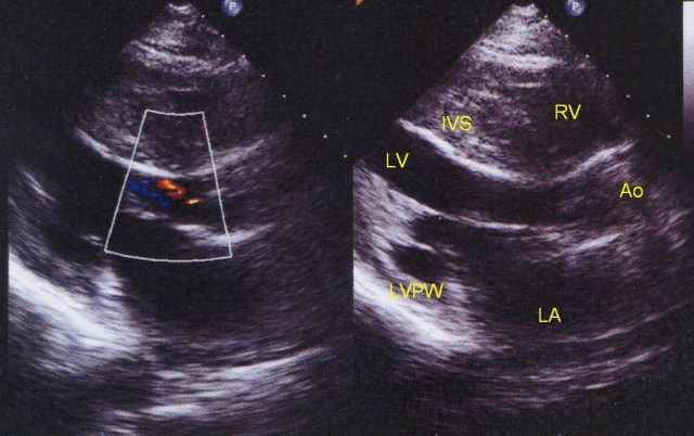 Echocardiogram in hypertrophic cardiomyopathy, parasternal long axis view