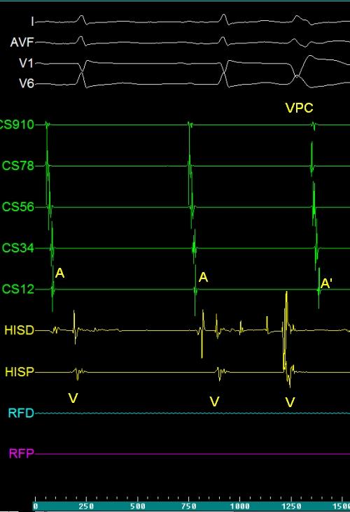EP tracing of ventricular premature complex